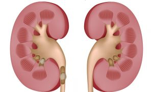 Causes For Kidney Stones