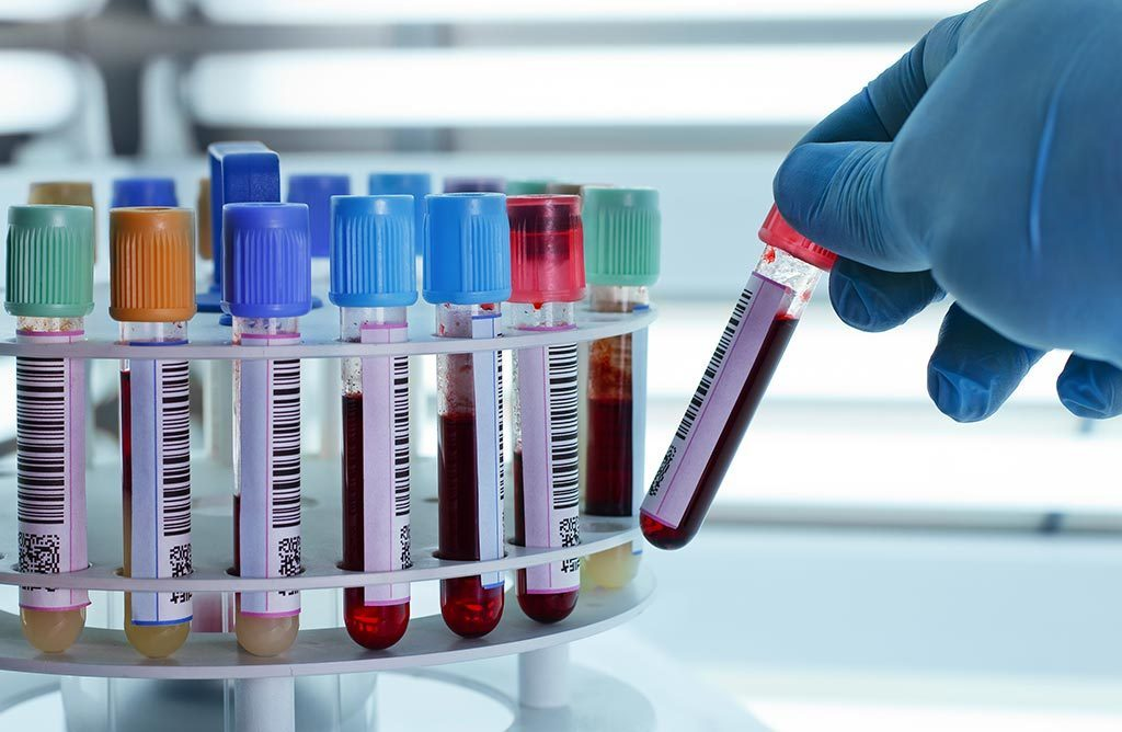 A Small Guidance For Understanding Blood Test ebuddynews