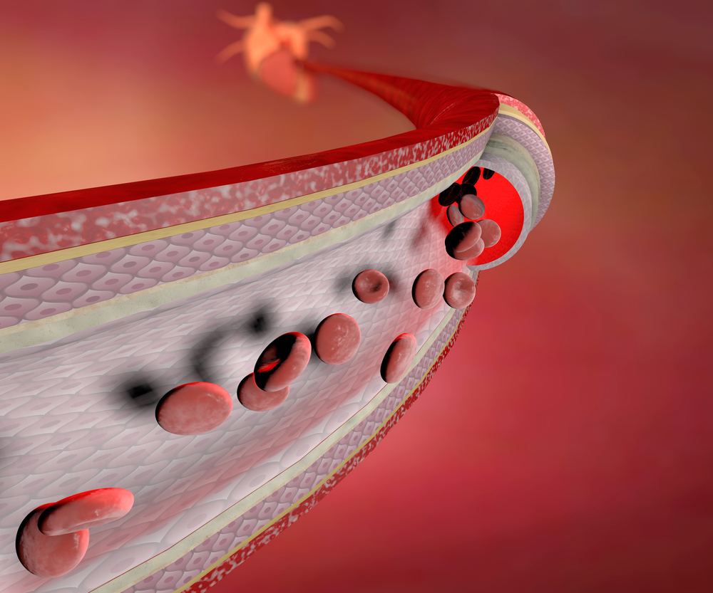 Most Common Types of Vasculitis In People Of All Ages - ebuddynews