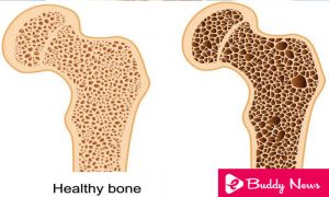 Bone Health Osteoperosis - eBuddy News