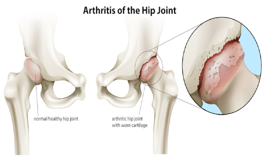 Causes And Risk Factors of Hip Arthrosis - eBuddy News